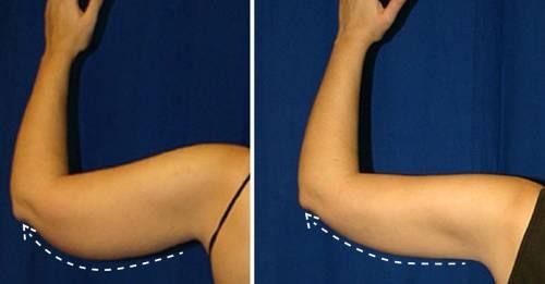 Esta podría ser la manera más sencilla de tonificar tus brazos