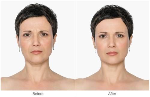 Mascarilla natural que elimina arrugas y líneas de expresión