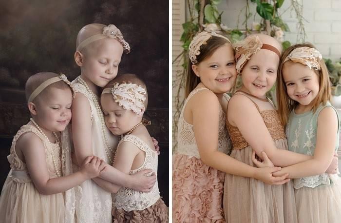 Antes y después de personas que lucharon contra el cáncer, ¡y vencieron!