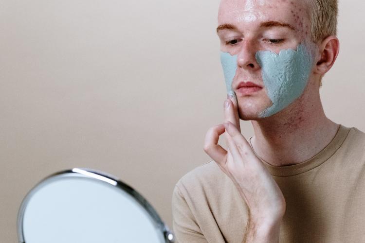Piel sin acné en una semana: ¿cómo lograrlo? Remedios caseros
