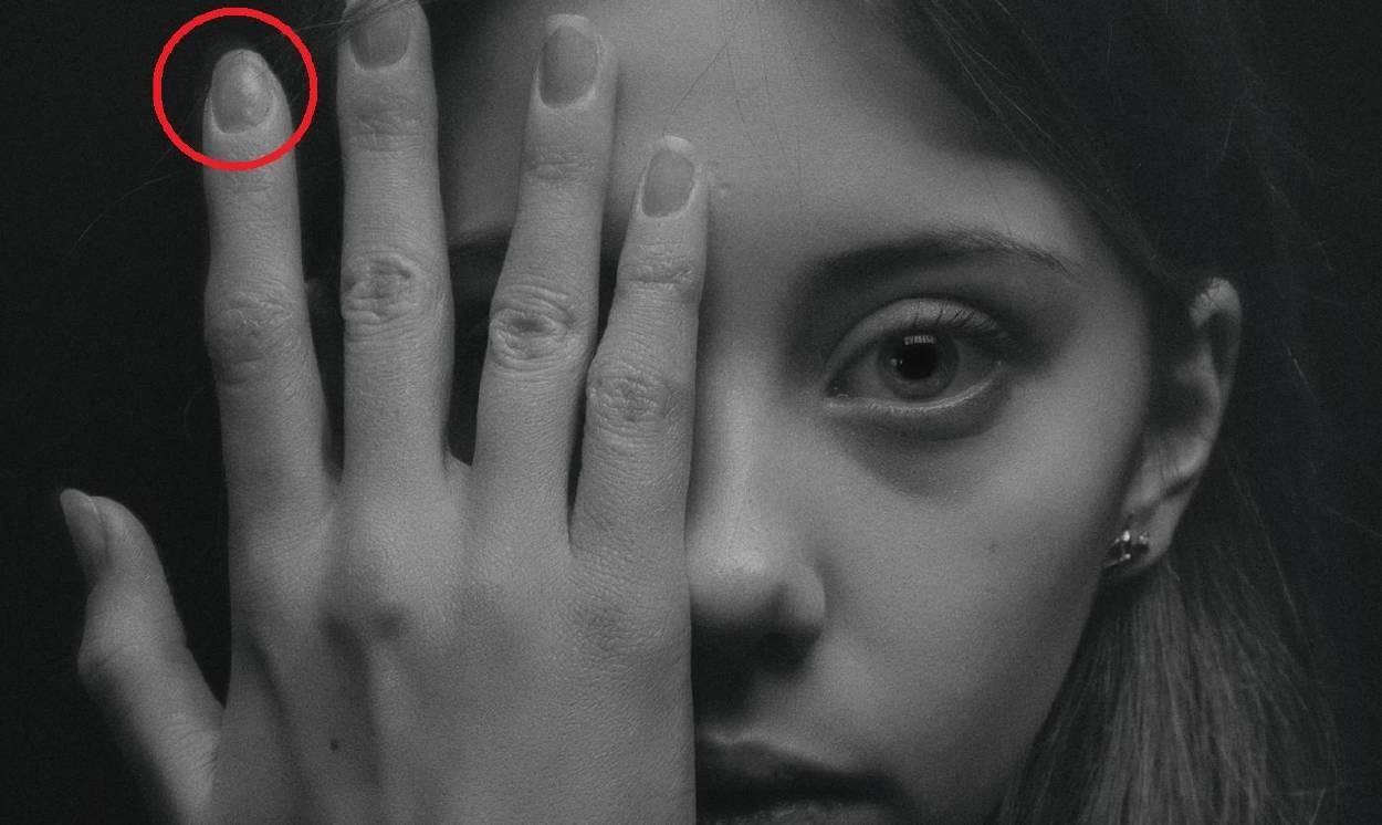 ¿Tienes cicatrices en el dedo índice? Puede que esta teoría viral sea cierta