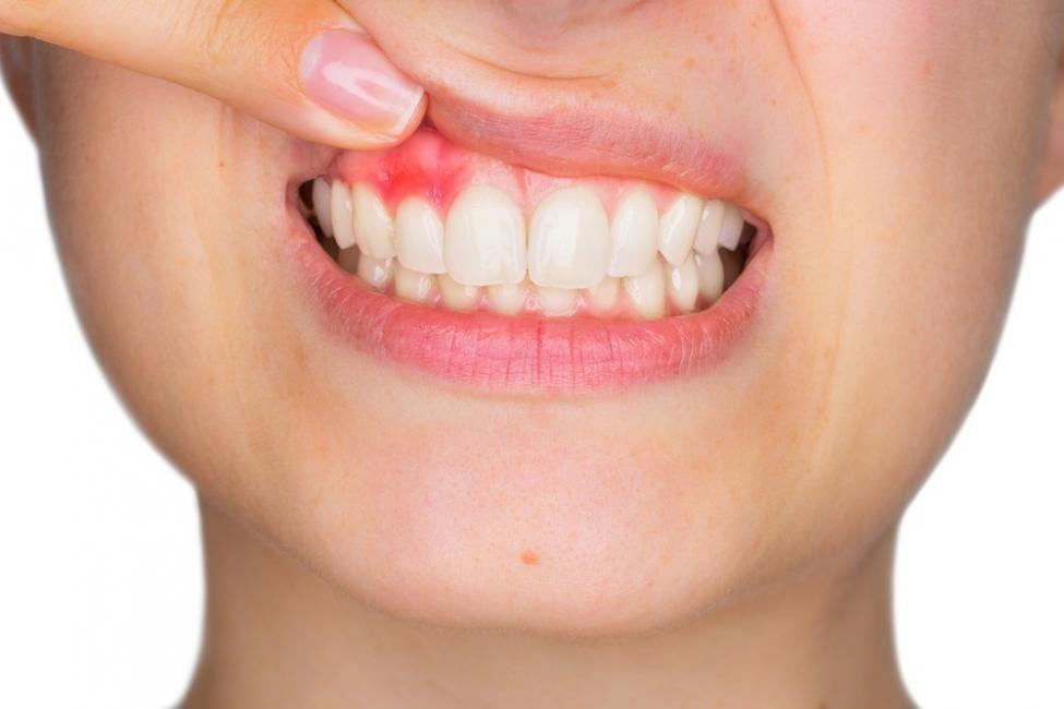problemas en dientes, muelas y encías