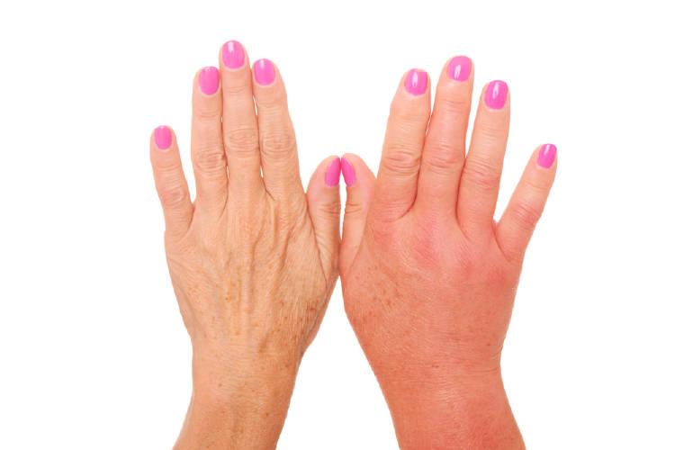 manos hinchadas retención de liquidos