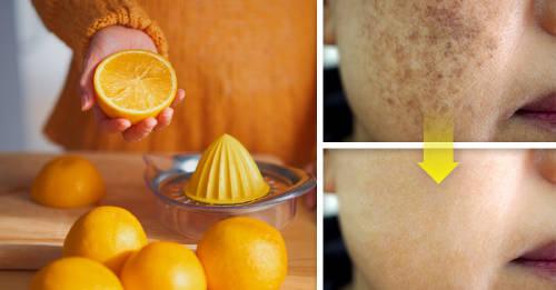 Alimentos que puedes incorporar en tu dieta para atenuar las manchas en la piel