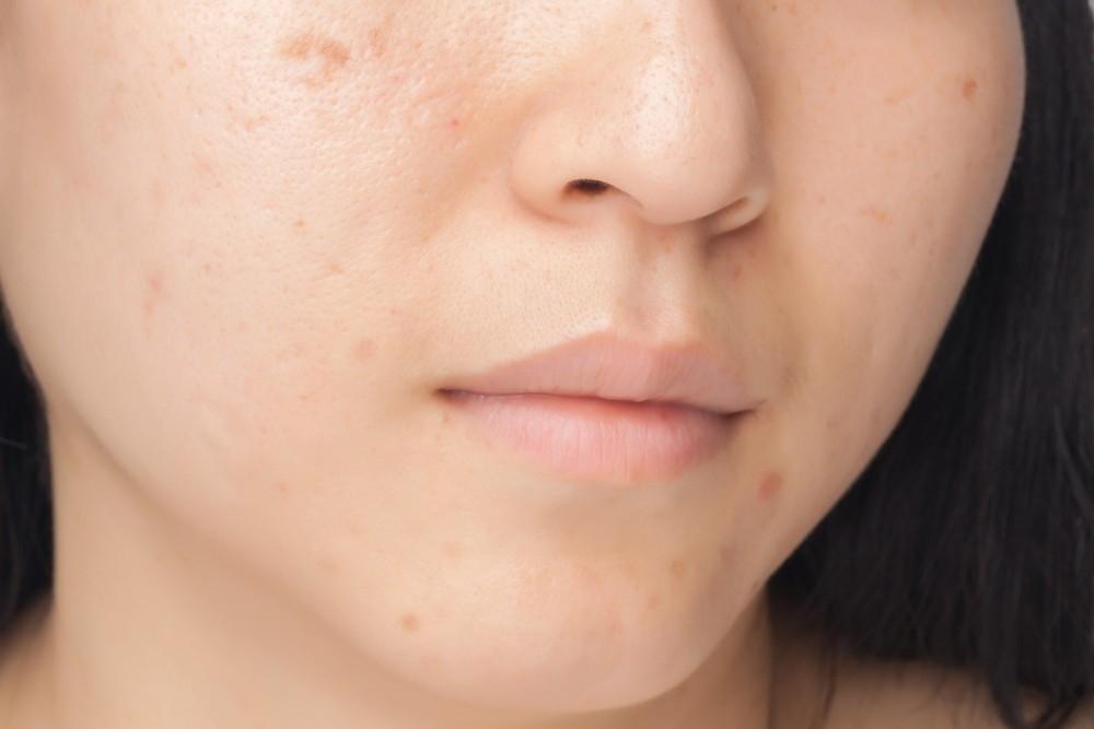 La quitar naturalmente de manchas piel