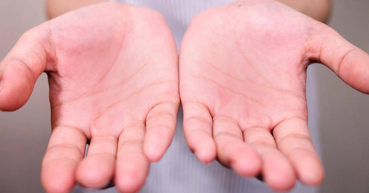 Por qué pueden inflamarse o ponerse coloradas las palmas de las manos