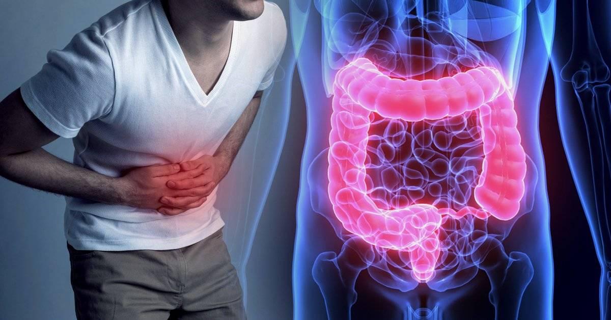 Alimentos para combatir con eficacia la inflamación intestinal