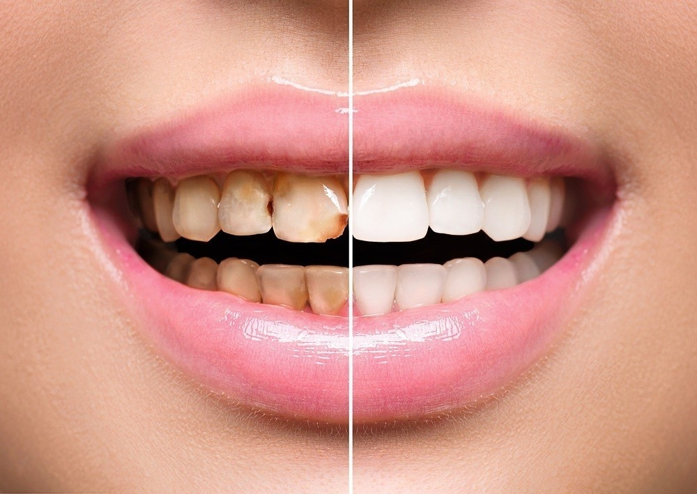 Como eliminar el sarro en los dientes naturalmente