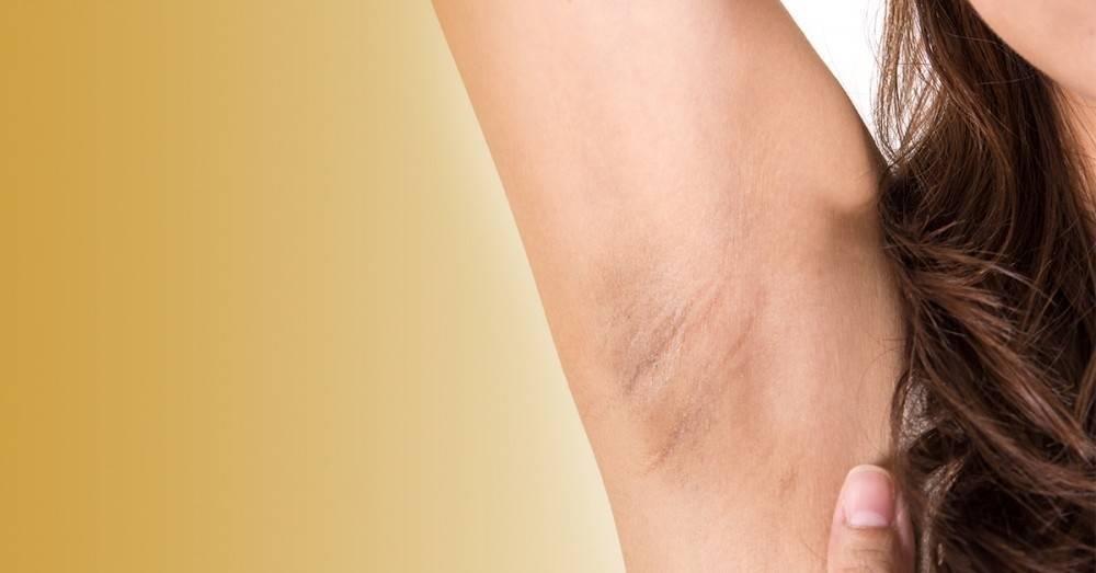 5 formas de blanquar naturalmente tus axilas