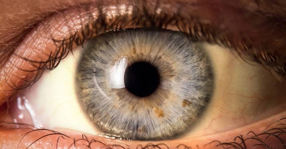 Si ves que el blanco de tus ojos se torna amarillo, ésta podría ser la razón