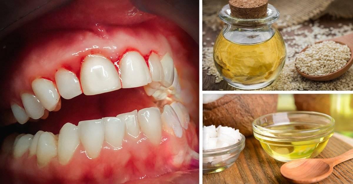 4 remedios naturales infalibles para reducir el sangrado de tus encías