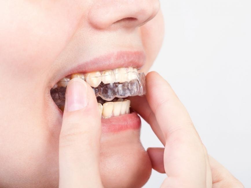 problemas en los dientes, muelas y encías