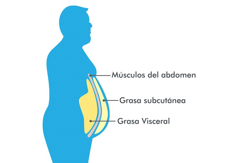 diabetes de luchadores de sumo