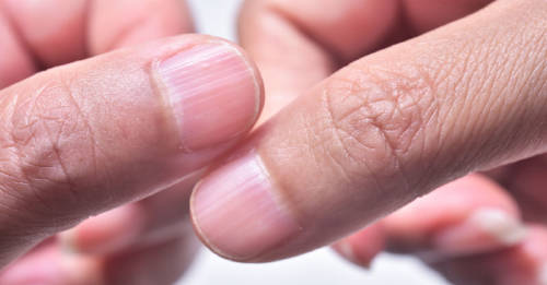 Los problemas en las uñas y su significado según la Biodescodificación