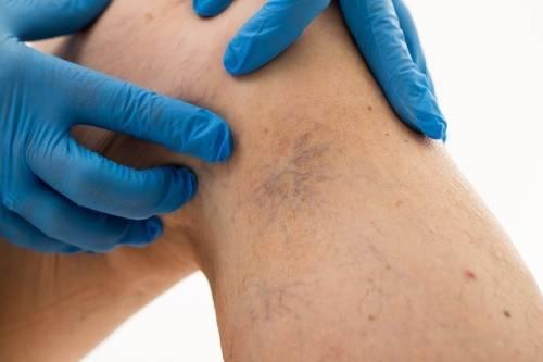 Várices en las piernas: Todo lo que necesitas saber