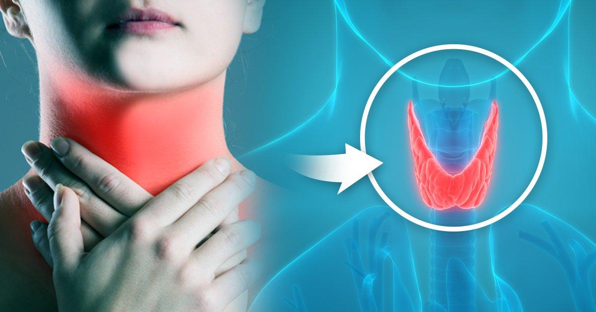 hipertiroidismo debilidad y perdida de peso repentina