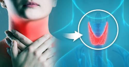 Qué es el hipotiroidismo: conoce sus síntomas para saber si puedes tenerlo