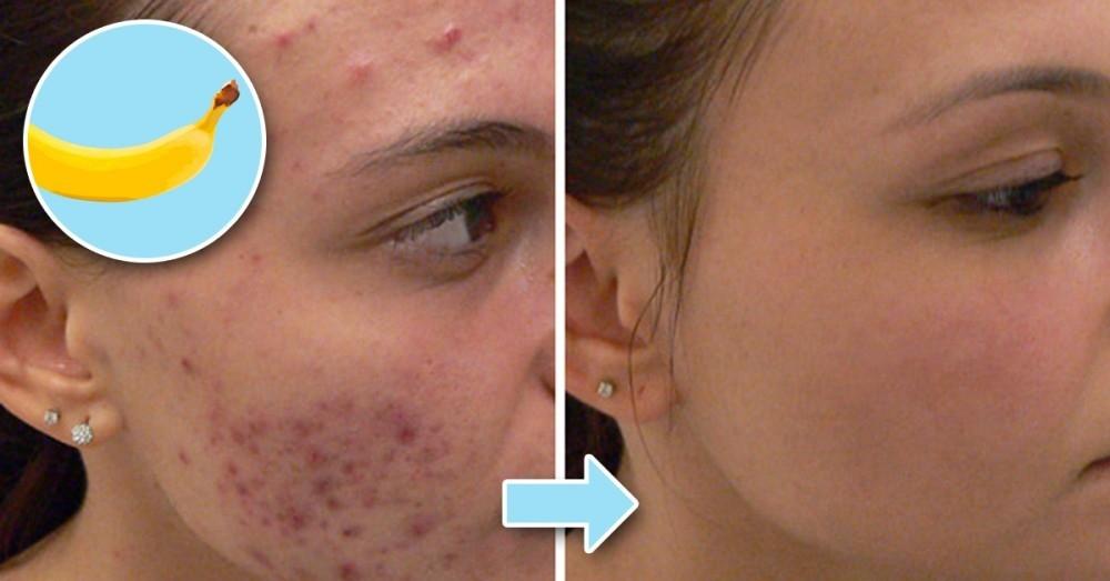 Como eliminar las manchas de la cara por embarazo