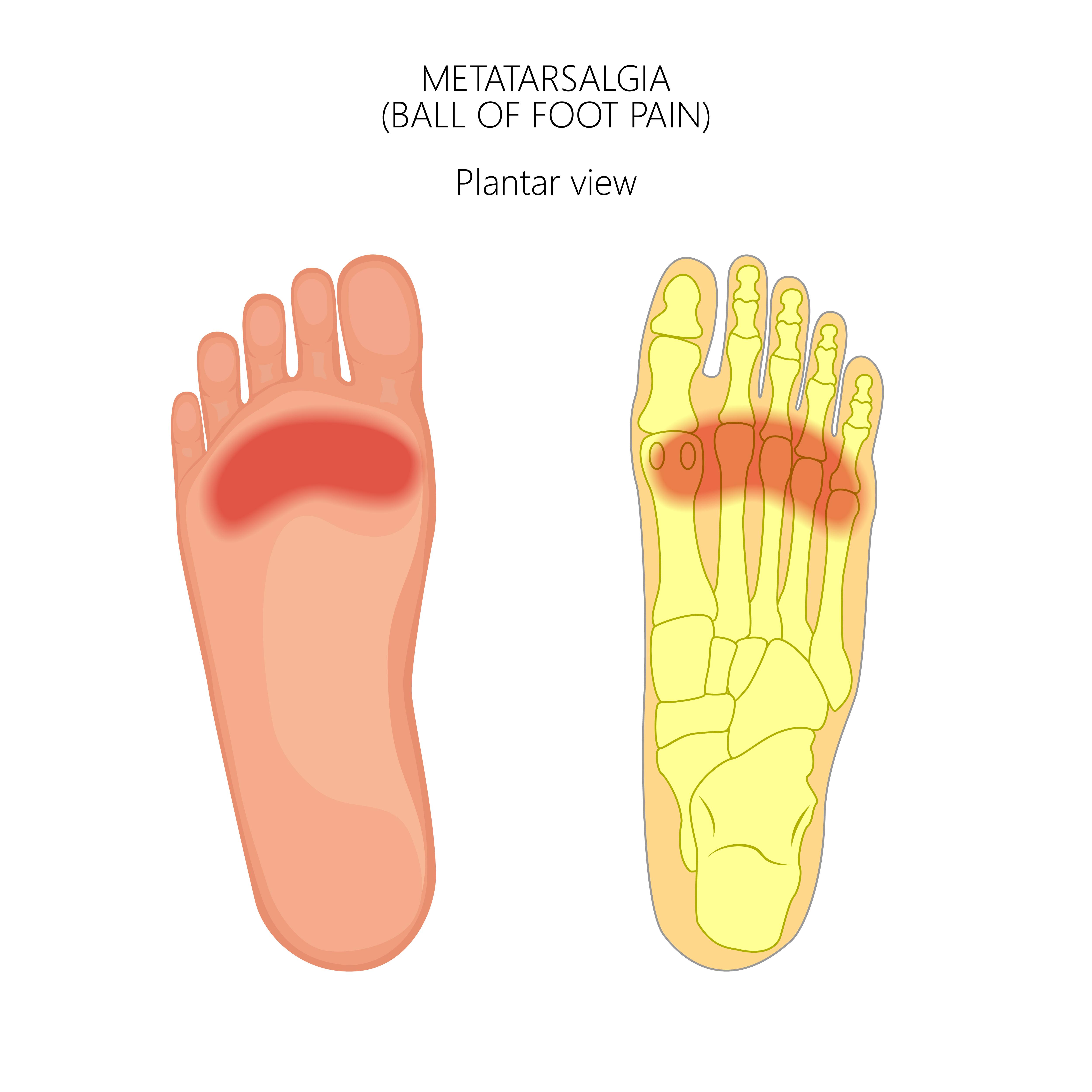 Metatarsalgia o dolor en la bola del pie