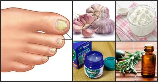 como curar el hongo delos pies con remedios caseros