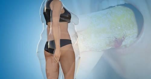 Científicos de Yale descubren accidentalmente el secreto para comer grasa y no engordar