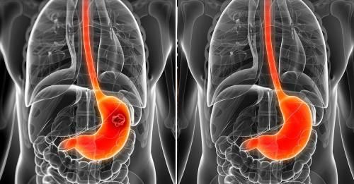 Estas combinaciones de alimentos pueden protegerte contra el cáncer
