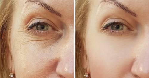 7 secretos de belleza facial que no escuchas con frecuencia