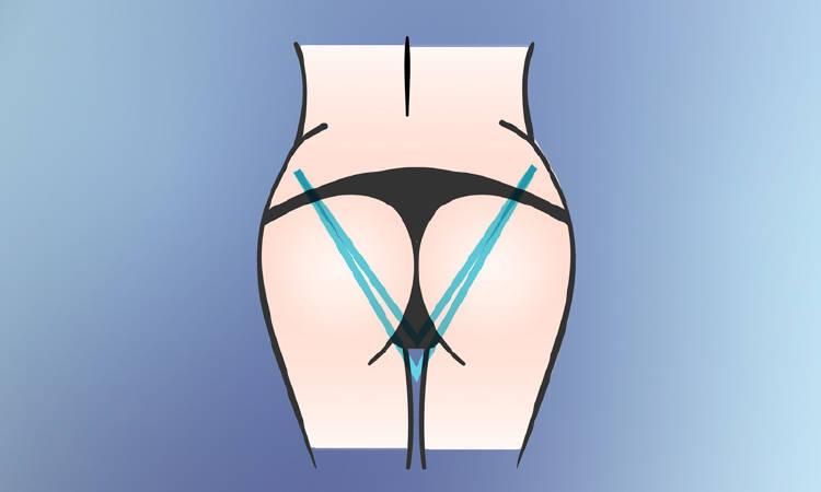 forma de gluteos v triangulo invertido