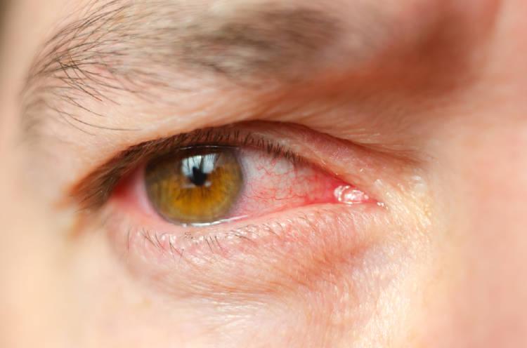 Síntomas que avisan los ojos