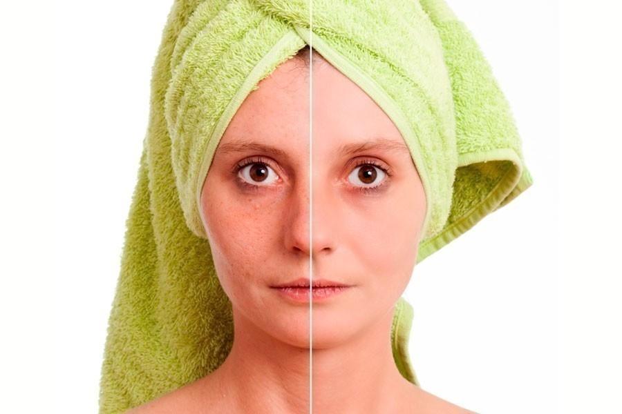 como eliminar manchas del rostro de forma natural