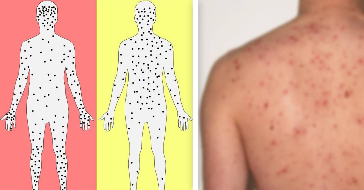 Esta enfermedad volvió del pasado y amenaza a países de todo el mundo
