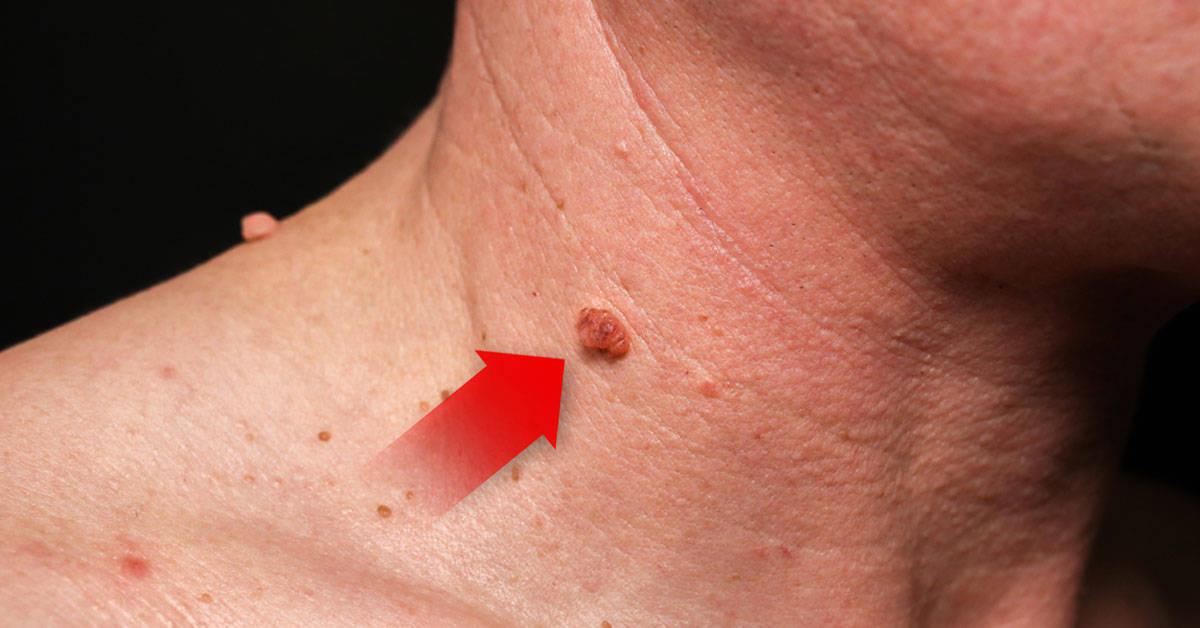 Este es el significado de las verrugas en el cuello
