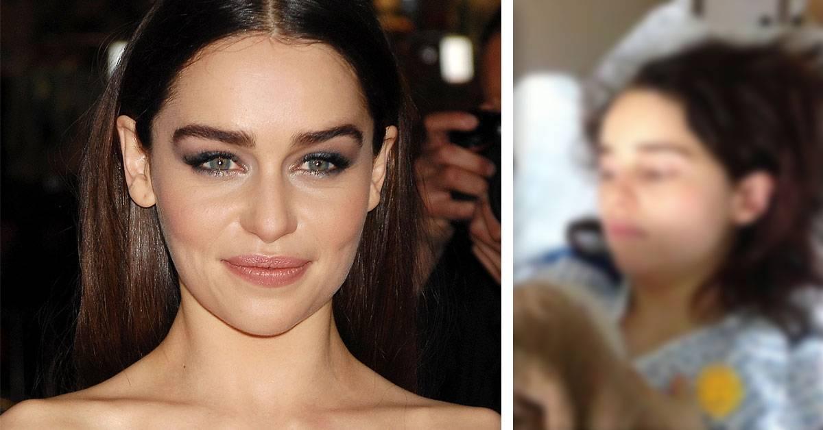 Emilia Clarke habla sobre su lucha contra el aneurisma cerebral: cómo detectarlo