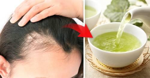 5 alimentos para detener la caída del cabello