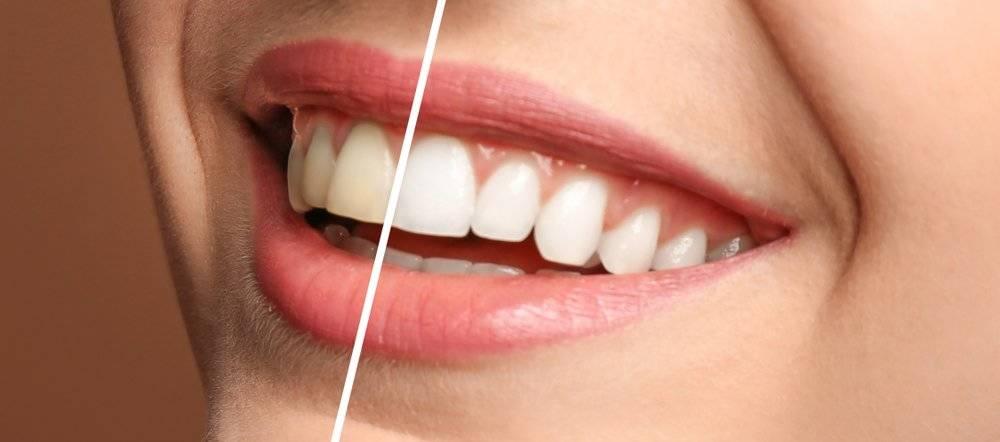 Una rápida, sencilla y natural de blanquear tus dientes