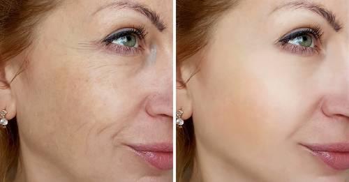 9 cosas que hacen las personas que no tienen arrugas