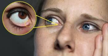 ¿Por qué tenemos un agujero dentro del ojo? ¡No es la salida de las lágrimas!
