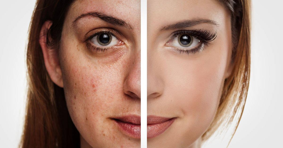 3 aguas naturales que le devolverán la vitalidad a tu piel