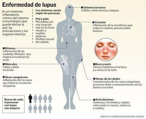 Las personas con lupus suelen tener síntomas que no son específicos de esta enfermedad