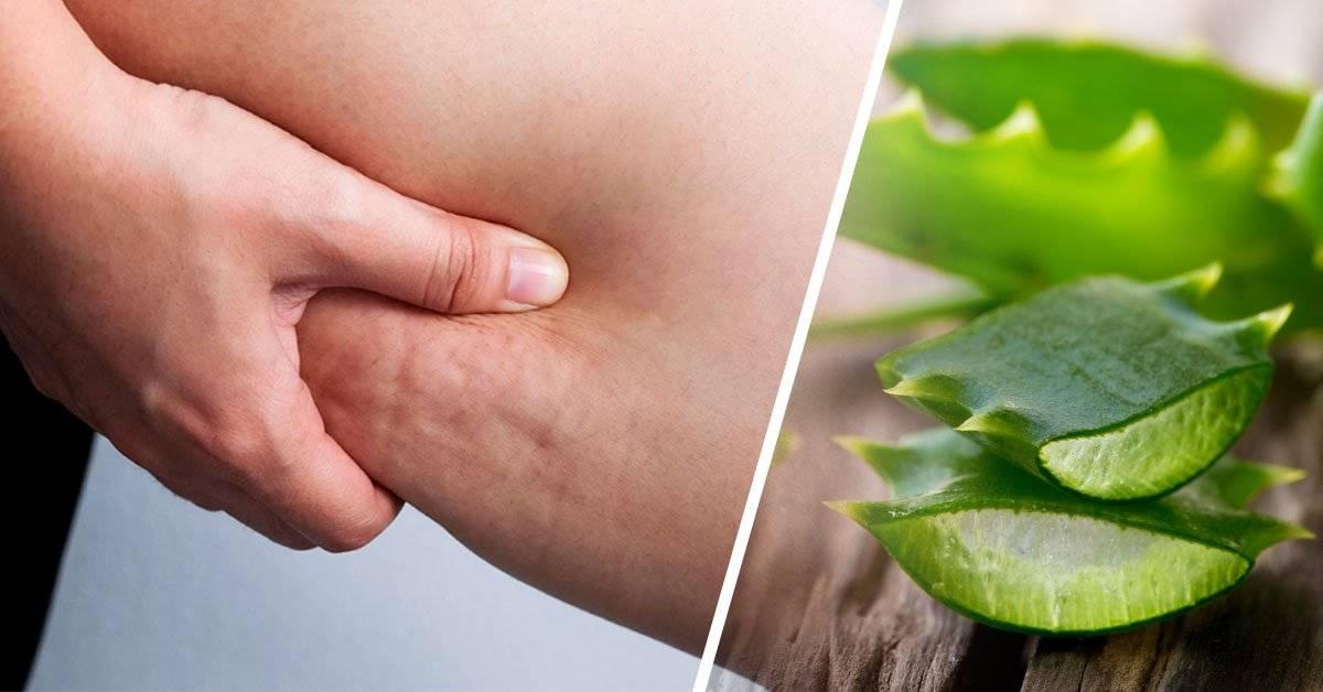 Una Crema Efectiva Contra La Celulitis Deberia Tener Alguno De Estos Ingredientes Naturales Clave Bioguia