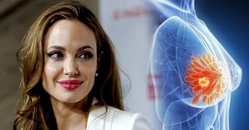 6 mujeres famosas que vencieron el cáncer de mama y ahora luchan para que no ..