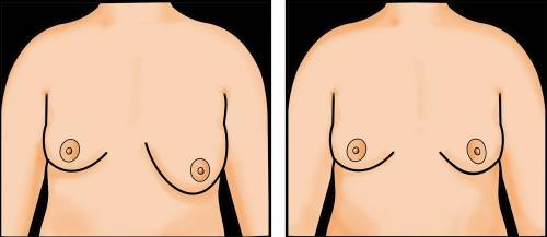 ¿Por qué las mujeres pueden tener un seno más grande que el otro?