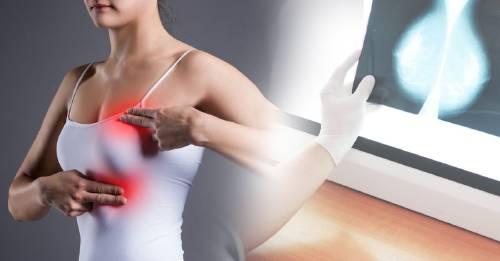 La conversión de células de cáncer de mama en células grasas impide la metástasis