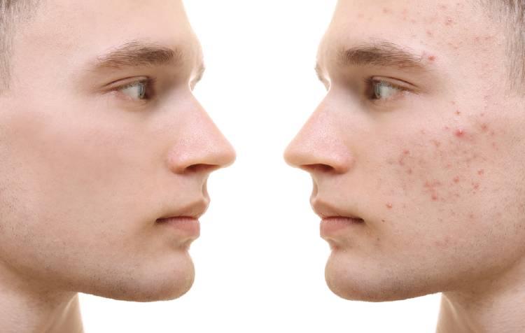 Factores que ocasionan acné en el rostro