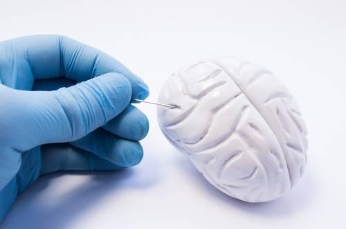 Parkinson: cuáles son los primeros síntomas y cómo puede prevenirse