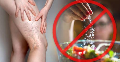 Cosas que debes evitar para prevenir las varices