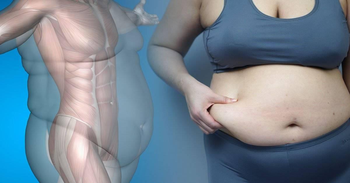 ¿Obesidad o sobrepeso? En qué se diferencian