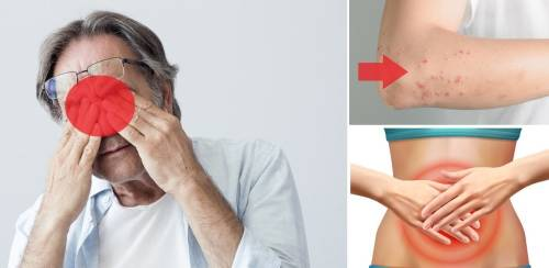 ¿Estás estresado? 5 síntomas a los que deberías prestar atención de inmed..