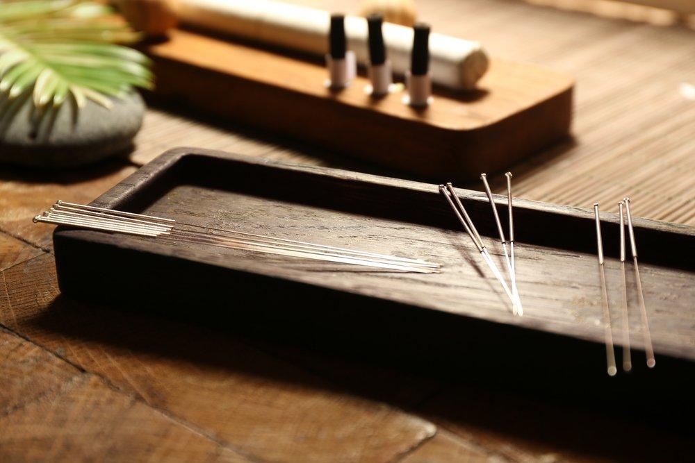 La acupuntura ayuda a aliviar los síntomas de la menopausia