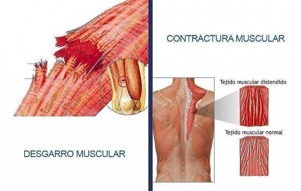 Tanto la contractura como el desgarro tienen su origen en el músculo
